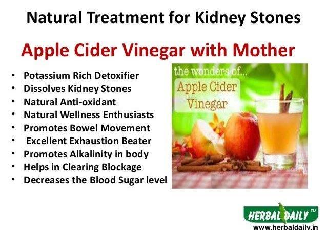 Kidney Stones Urine Natural Treatment Hindi