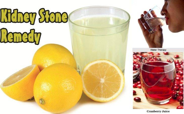 Natural Kidney Stones Treatments Nutriclue